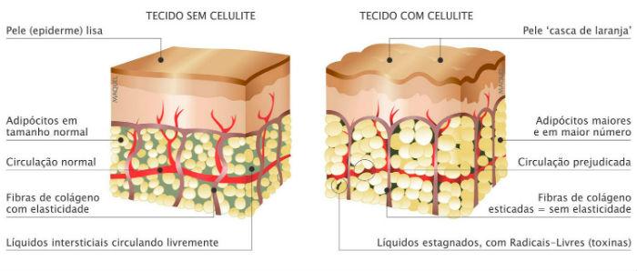 Tecido sem celulite / Tecido com celulite
