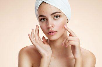 Qual o melhor tratamento para acne?