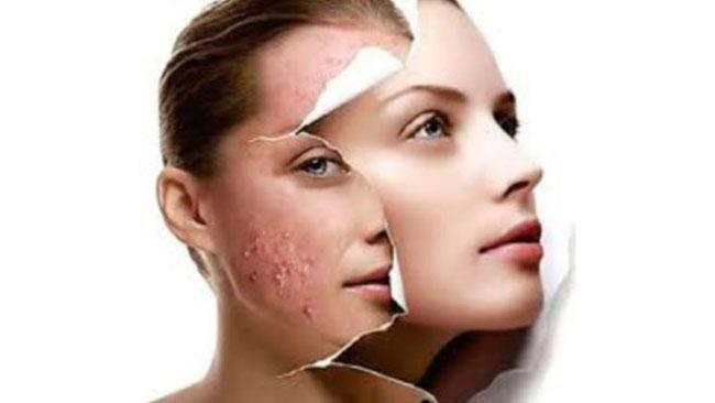 Sem acnes em apenas dois meses