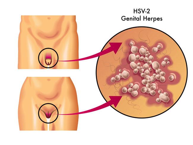 Herpes genital é transmitida pelo sexo