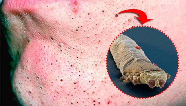 Cravos e o Ácaro Demodex Folliculrum aracnideos