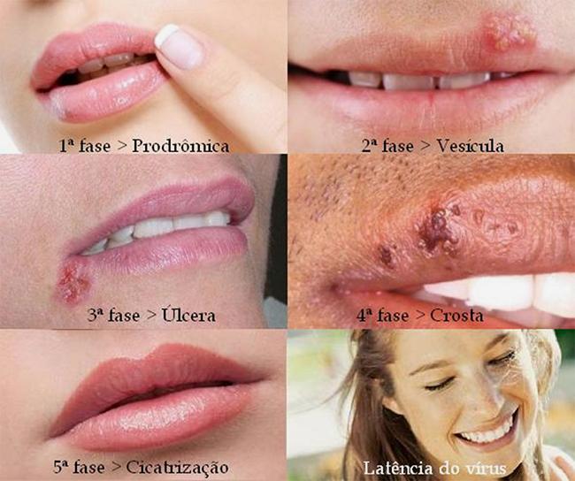 Herpes labial estágios