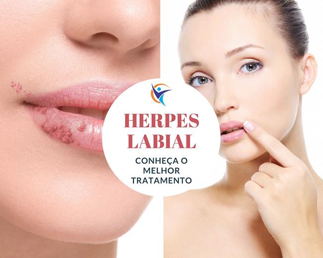 O que é Herpes labial? Tem Cura? Conheça o Melhor Tratamento