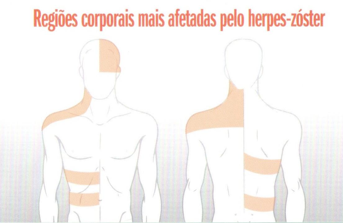 Regiões corporais mais afetadas pelo Herpes Zoster