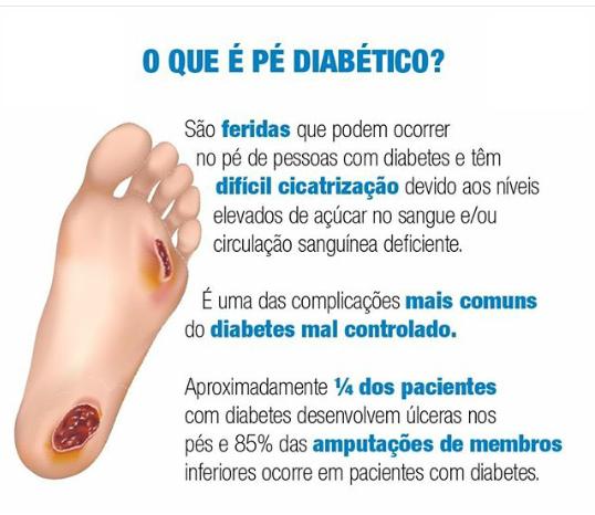 Pé diabético são feridas que podem ocorrer no pé de pessoas com diabetes e tem difícil cicatrização.