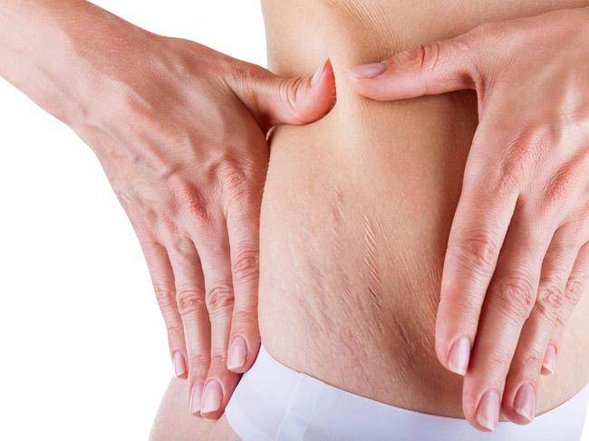 Como acabar com as estrias com o tratamento de microagulhamento?