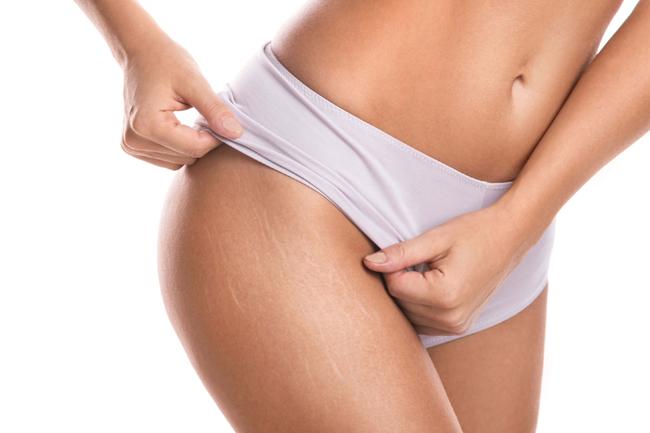O microagulhamento para estrias funciona?