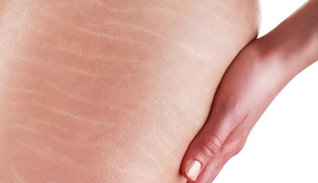 O microagulhamento para estrias possui contraindicação?