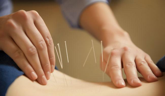 A acupuntura é outra alternativa que pode auxiliar no tratamento de dores da coluna