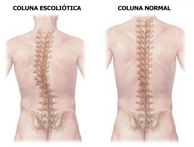 Escoliose é um desvio da coluna cervical, é um tipo de curvatura