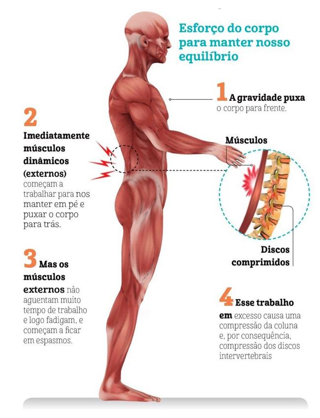 Doenças que podem ser motivo das suas dores nas costas