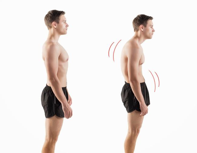 Cervicalgia ou má postura