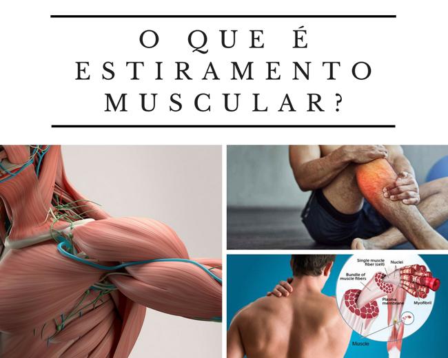 O que é estiramento muscular?