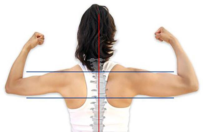 Desequilíbrio muscular